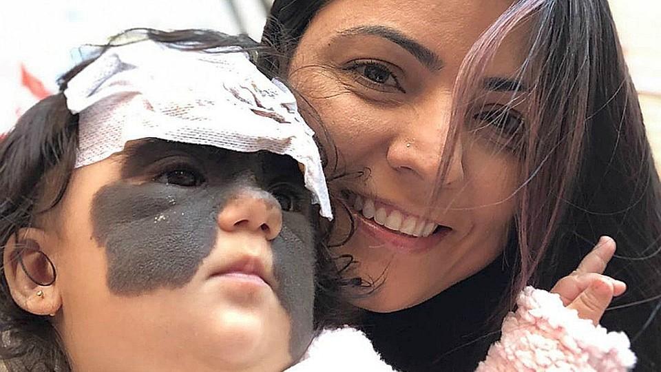 В Краснодаре провели операцию шестимесячной девочке, от которой отказались врачи в США