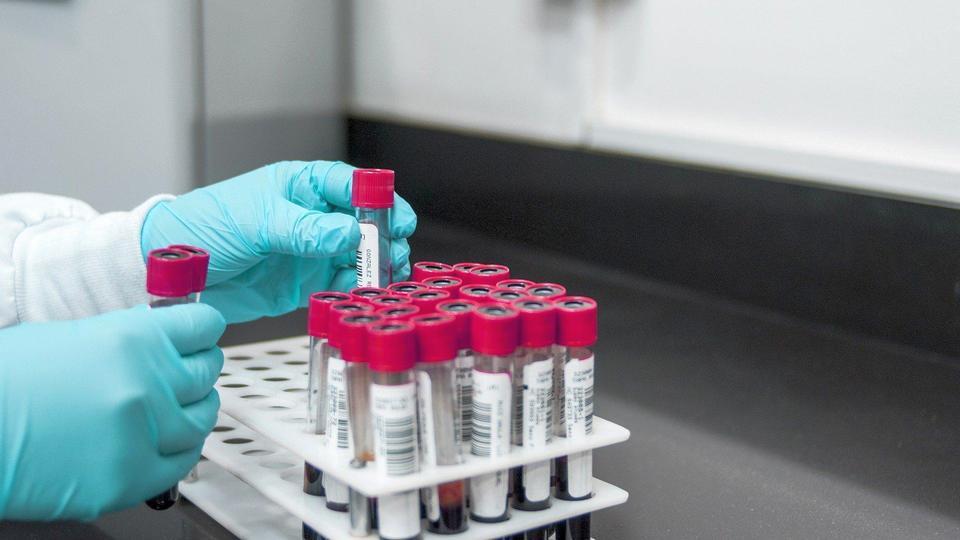 115 новых случаев коронавируса выявили в Свердловской области