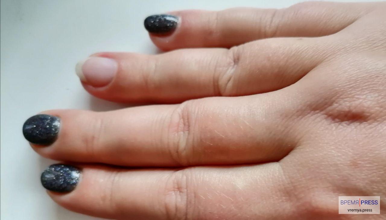 Медики просят удалять темный гель-лак, если вы заболели